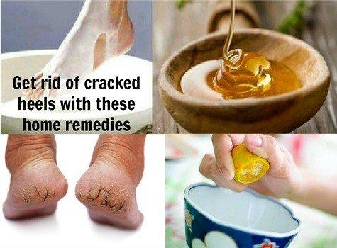 Remédios caseiros para pés rachados