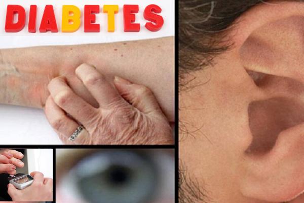 Sintomas de diabetes-